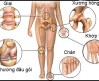 Các thực phẩm chức năng về bệnh xương khớp