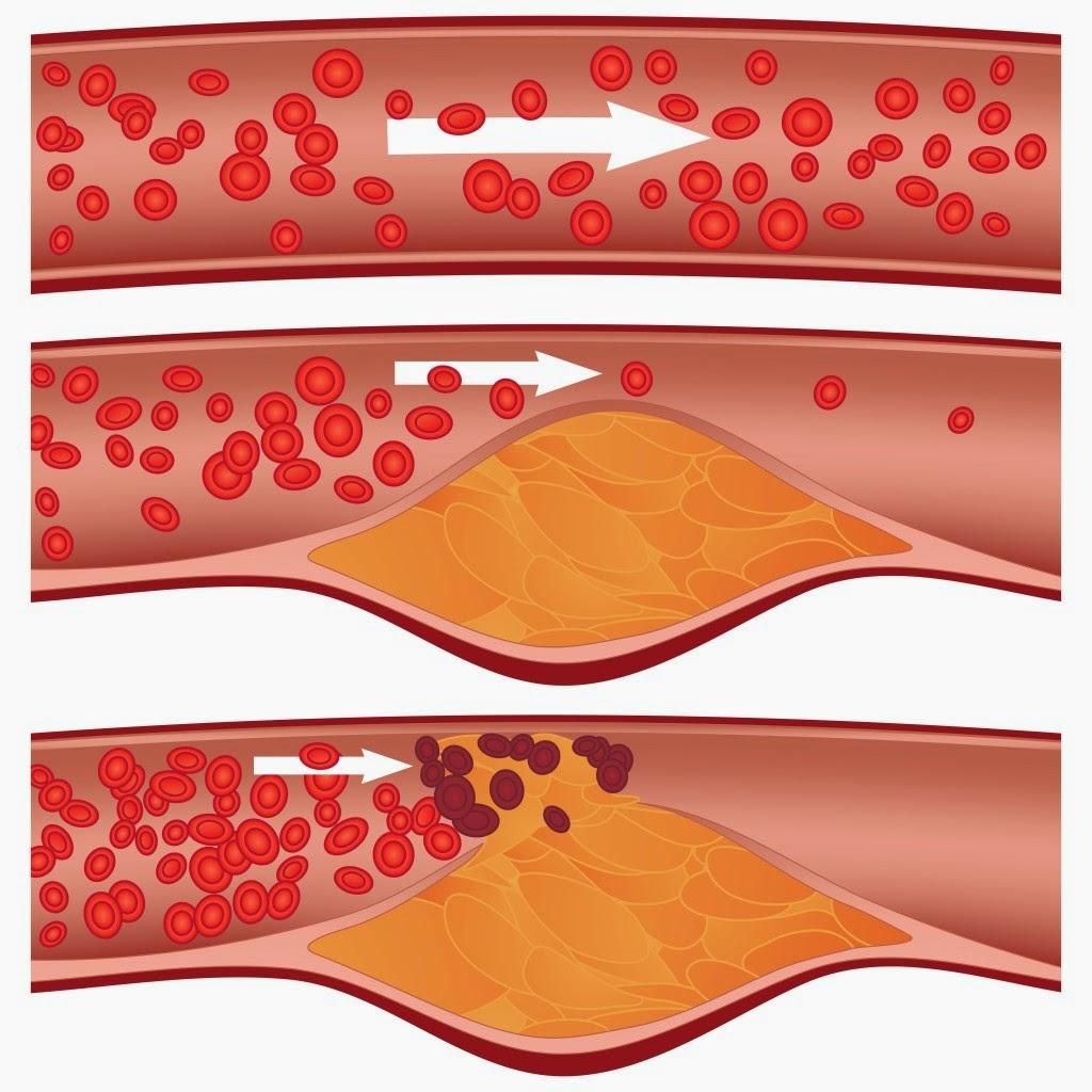 Bệnh mỡ máu có gây nguy hiểm cho người bệnh không