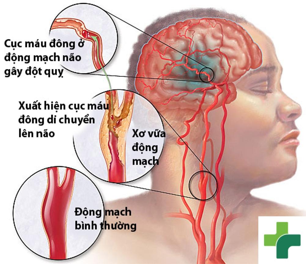 Hoang mang trước phương pháp chữa bệnh tai biến mạch máu não bằng kim