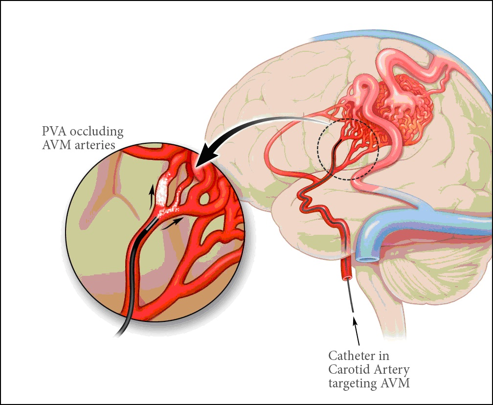 Hơn 200000 người mắc bệnh tai biến mạch máu não mỗi năm