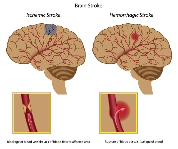 """9 ngày với thuốc chữa bệnh tai biến mạch máu não """"tự chế"""""""