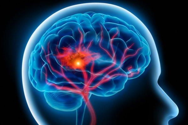 Bệnh nhân tai biến mạch máu não nên dùng an cung ngưu như thế nào 1