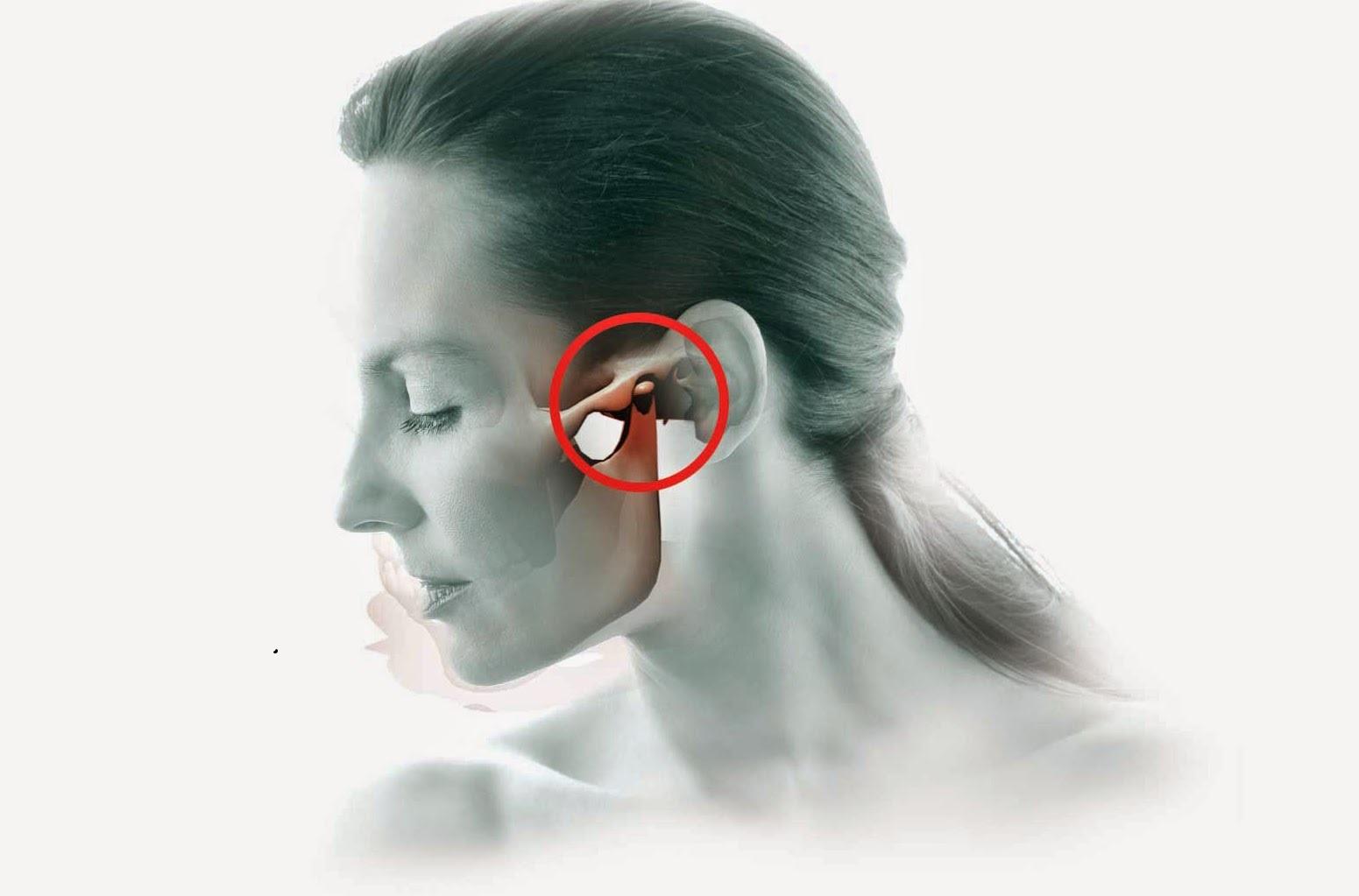 Biến dạng khuôn mặt nếu không chữa viêm khớp hàm sớm 1