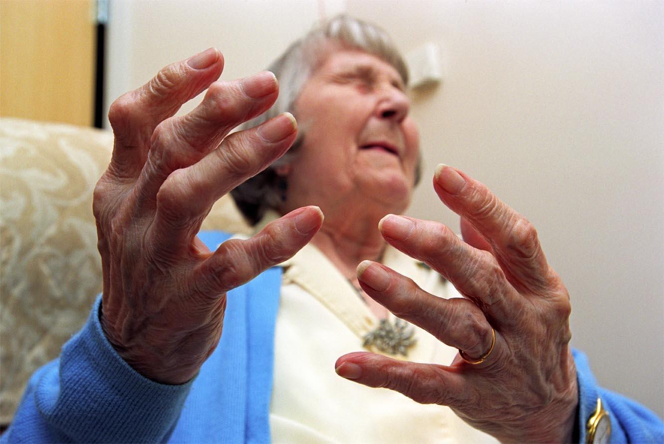 Các biến chứng của bệnh đau khớp xương 1