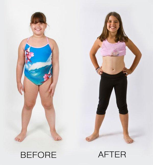 Cách giảm cân cho trẻ béo phì an toàn