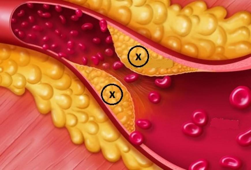 Người mỡ máu kiêng ăn gì để bảo đảm sức khỏe
