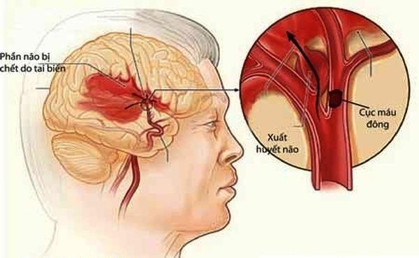 70% người bệnh tử vong vì các biến chứng của bệnh cao huyết áp 2